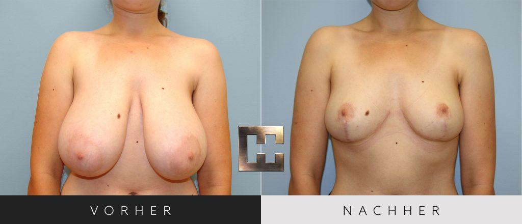 Brustverkleinerung Vorher Nachher Bilder Patient 075