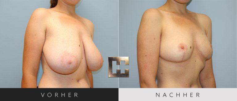 Brustverkleinerung Vorher Nachher 075 Bild #2