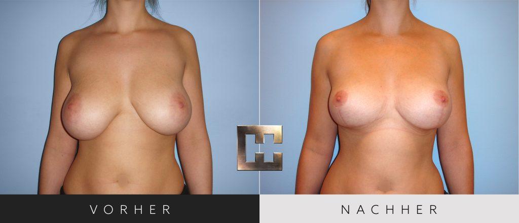 Brustverkleinerung Vorher Nachher Bilder Patient 076