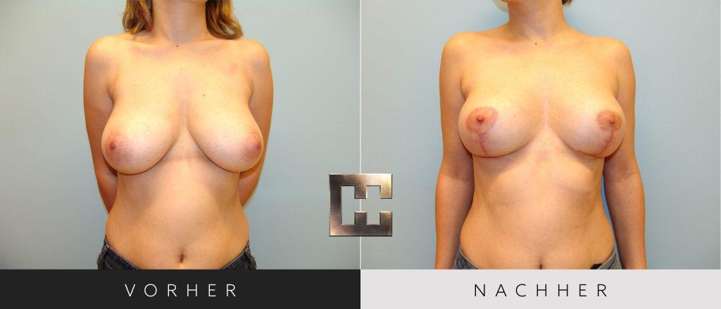 Brustverkleinerung Vorher Nachher Bilder Patient 077