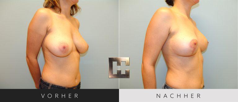 Brustverkleinerung Vorher Nachher 077 Bild #2