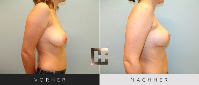 Brustverkleinerung Vorher Nachher 077 Bild #3