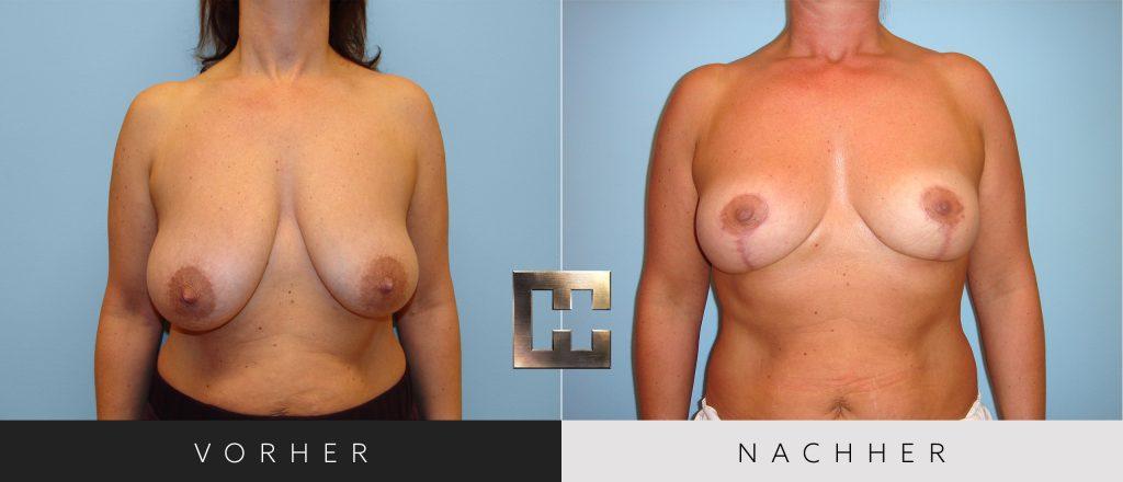 Brustverkleinerung Vorher Nachher Bilder Patient 078