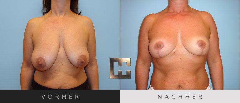 Brustverkleinerung Vorher Nachher 078 Bild #1
