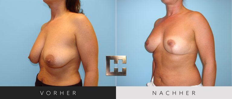 Brustverkleinerung Vorher Nachher 078 Bild #2