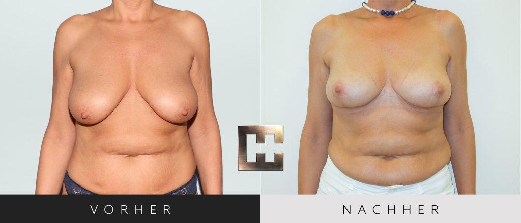 Bruststraffung Vorher Nachher Bilder Patient 082