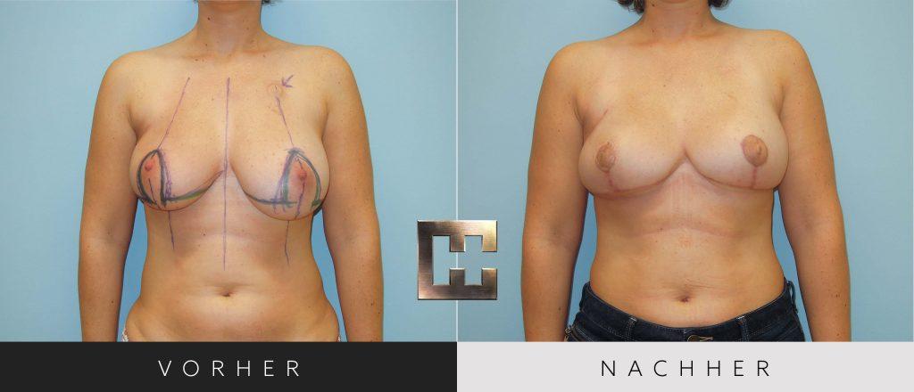 Brustrekonstruktion Vorher Nachher Bilder Patient 091