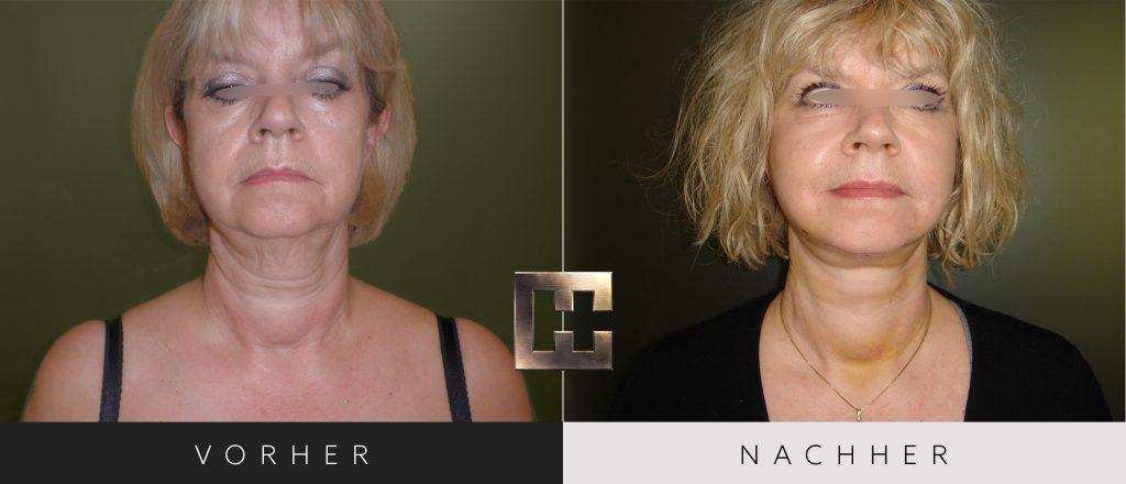 Facelift Vorher Nachher Bilder Patient 132