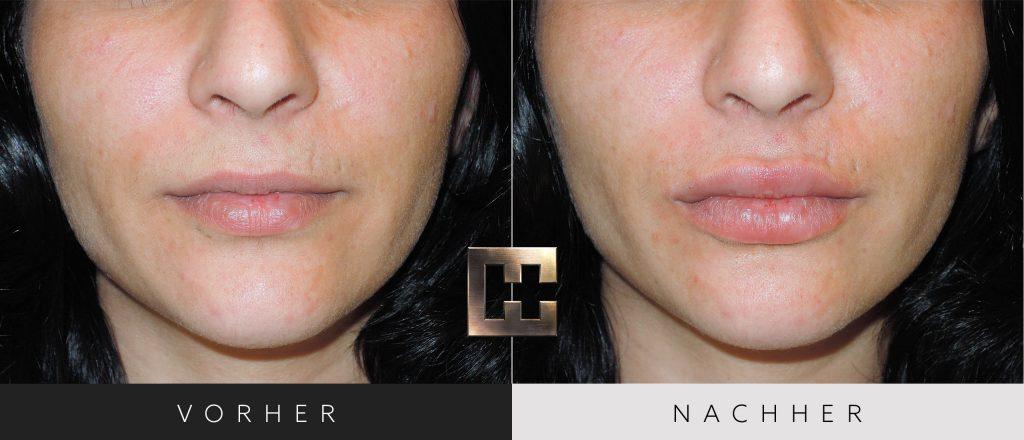 Lippen aufspritzen Vorher Nachher Bilder Patient 134