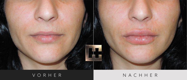 Lippen aufspritzen Vorher Nachher 134 Bild #1