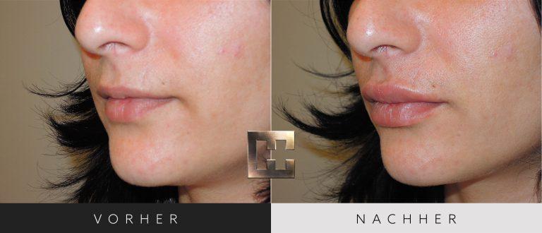 Lippen aufspritzen Vorher Nachher 134 Bild #2