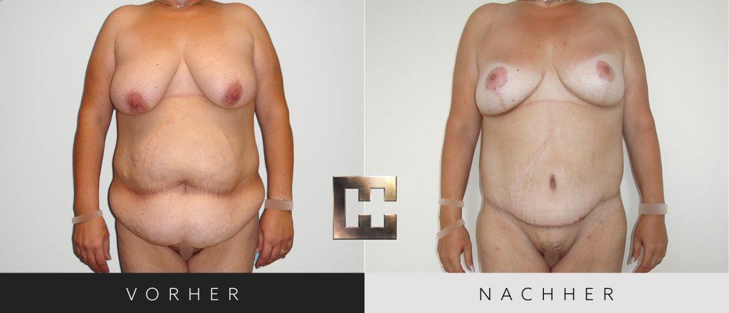 Bauchdeckenstraffung Vorher Nachher Bilder Patient 142