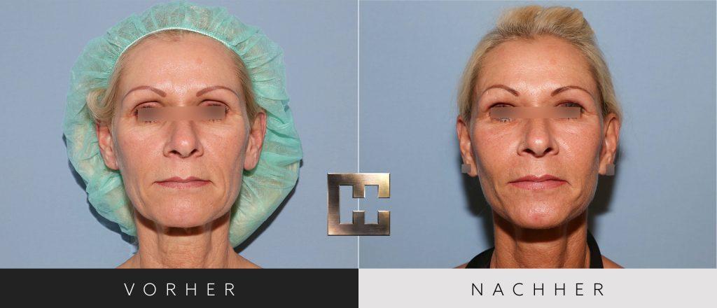 Facelift Vorher Nachher Bilder Patient 154
