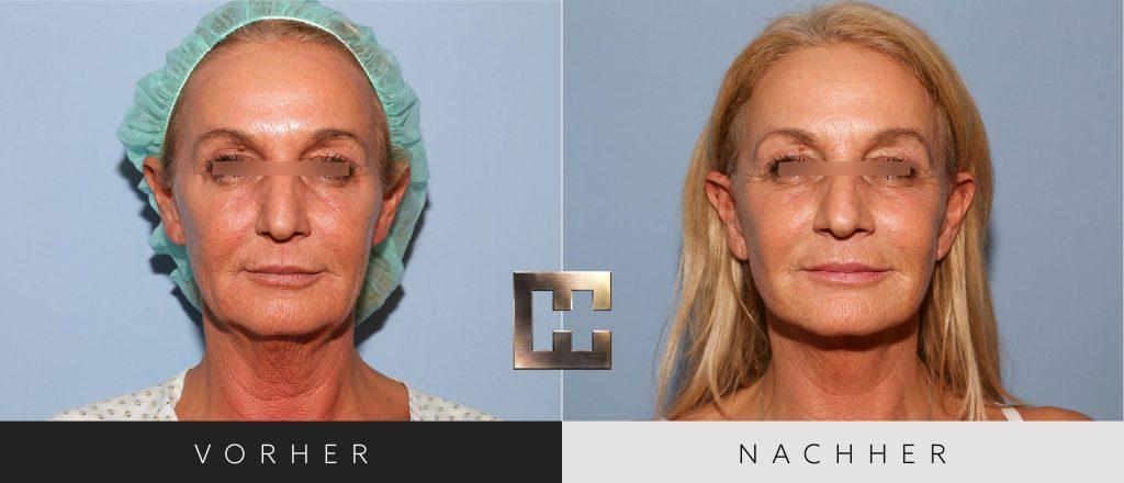Facelift Vorher Nachher Bilder Patient 155
