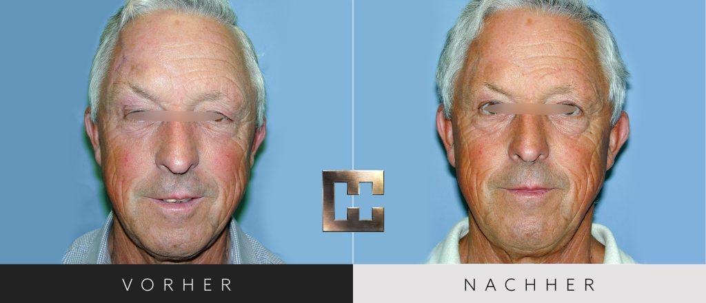 Augenlidkorrektur Vorher Nachher Bilder Patient 160