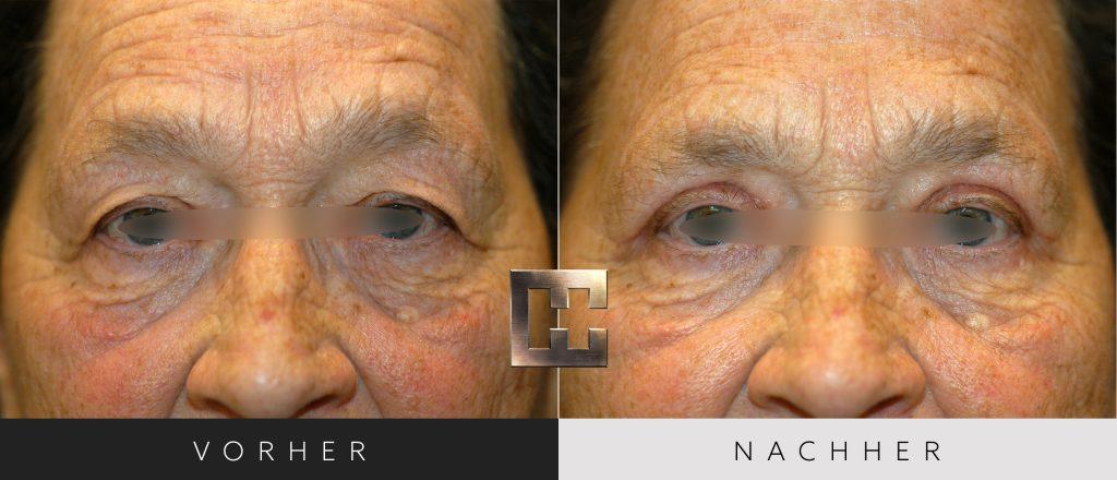 Augenlidkorrektur Vorher Nachher Bilder Patient 161