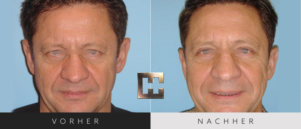 Augenlidkorrektur Vorher Nachher Bilder Patient 162