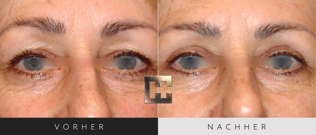 Augenlidkorrektur Vorher Nachher Bilder Patient 163