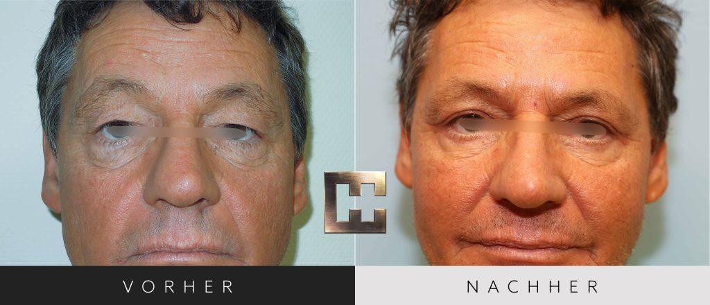 Augenlidkorrektur Vorher Nachher Bilder Patient 164