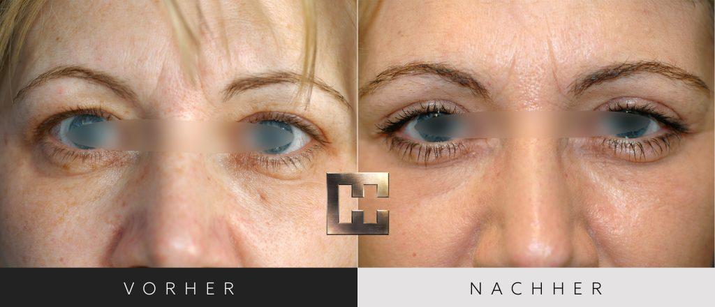 Augenlidkorrektur Vorher Nachher Bilder Patient 166