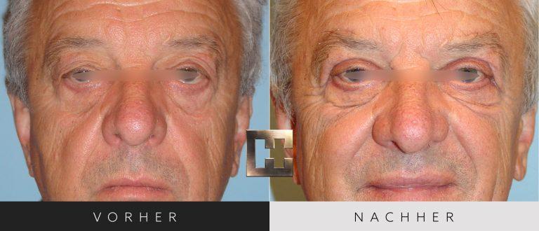Augenlidkorrektur Vorher Nachher 167 Bild #1