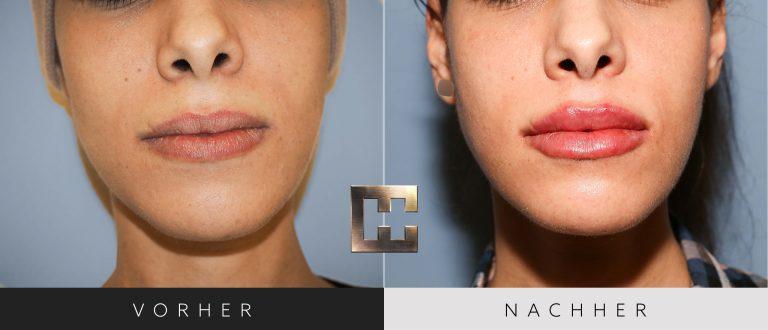 Lippen aufspritzen Vorher Nachher 168 Bild #1