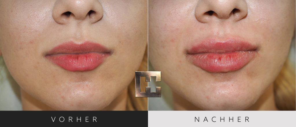 Lippen aufspritzen Vorher Nachher Bilder Patient 169
