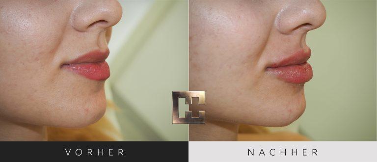 Lippen aufspritzen Vorher Nachher 169 Bild #2