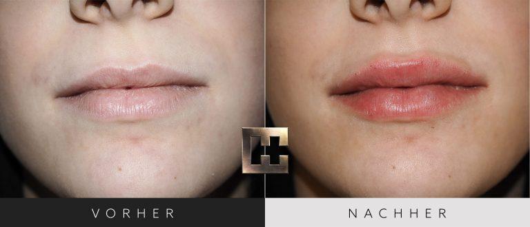 Lippen aufspritzen Vorher Nachher 170 Bild #1