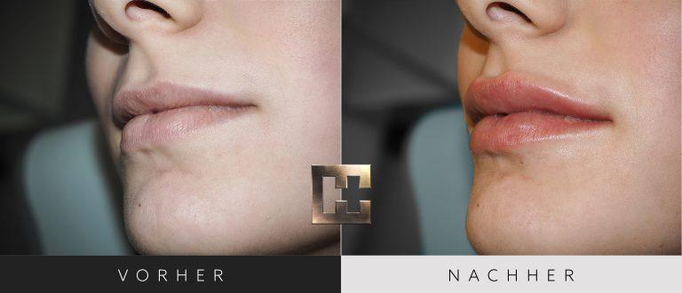 Lippen aufspritzen Vorher Nachher 170 Bild #2