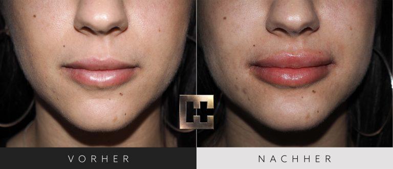 Lippen aufspritzen Vorher Nachher 171 Bild #1