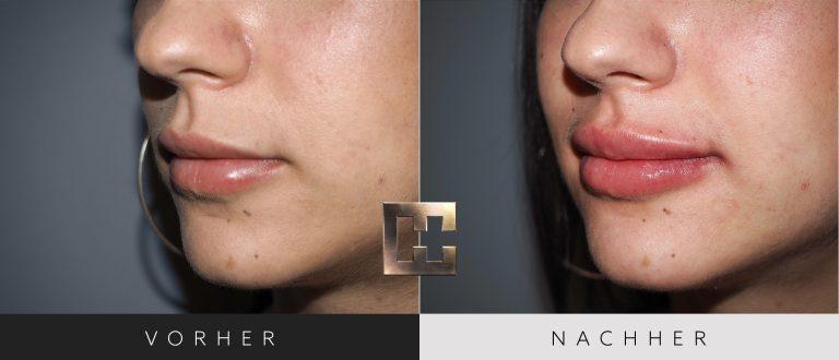 Lippen aufspritzen Vorher Nachher 171 Bild #2