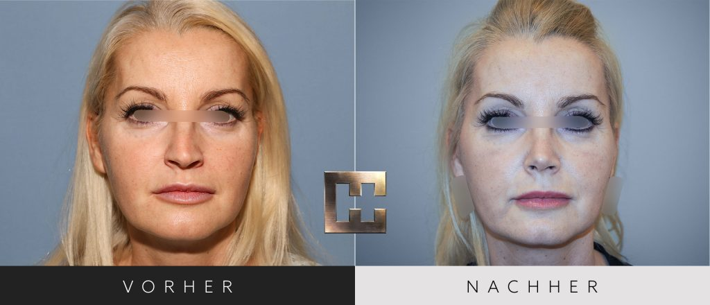 Nasenkorrektur Vorher Nachher Bilder Patient 172
