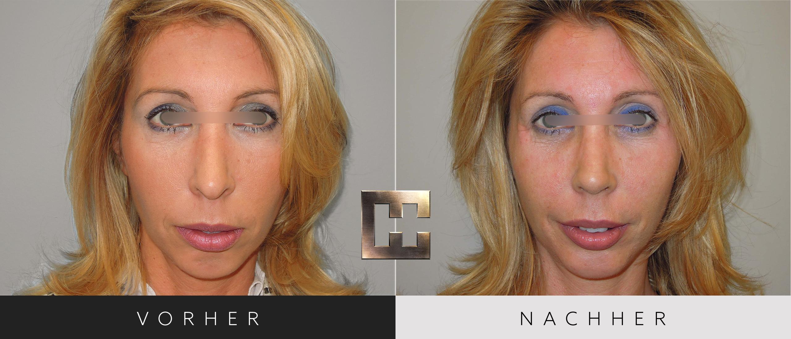 Nasenkorrektur vorher nachher frauen