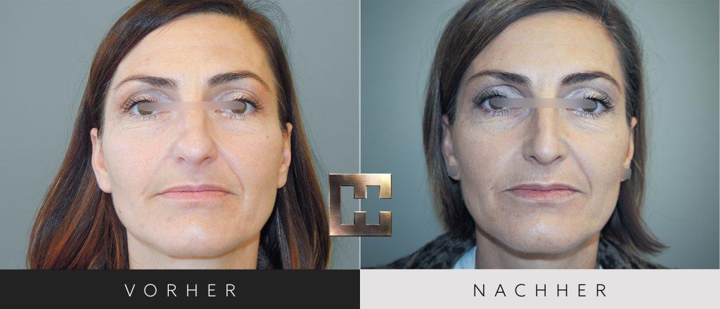 Nasenkorrektur Vorher Nachher Bilder Patient 177