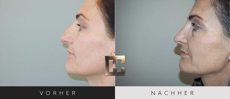 Nasenkorrektur Vorher Nachher 177 Bild #2