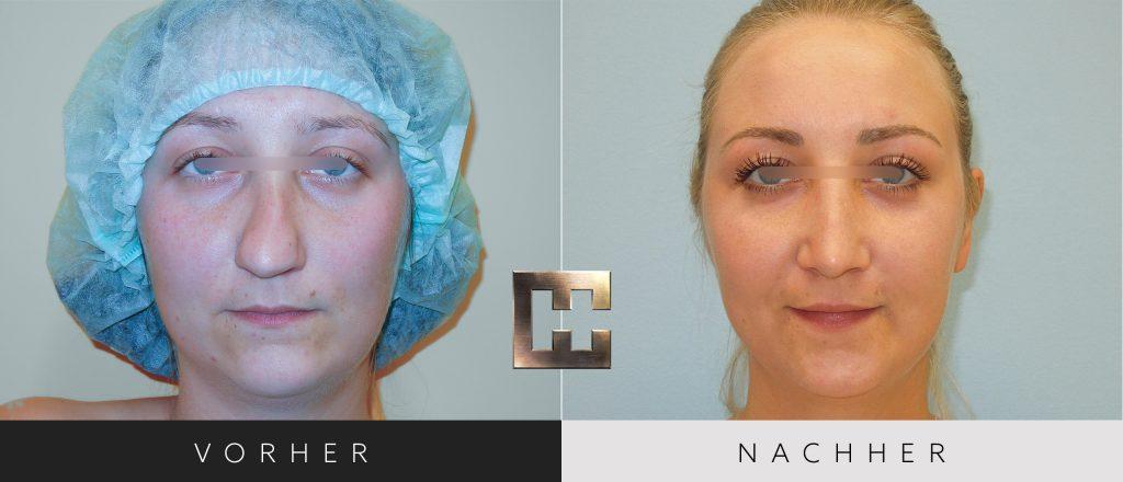 Nasenkorrektur Vorher Nachher Bilder Patient 179