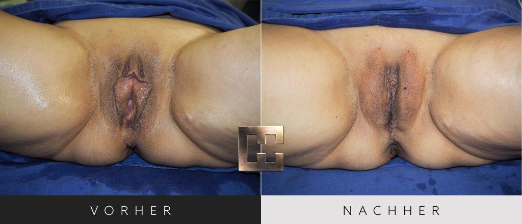 Vaginalverjüngung Vorher Nachher Bilder Patient 186
