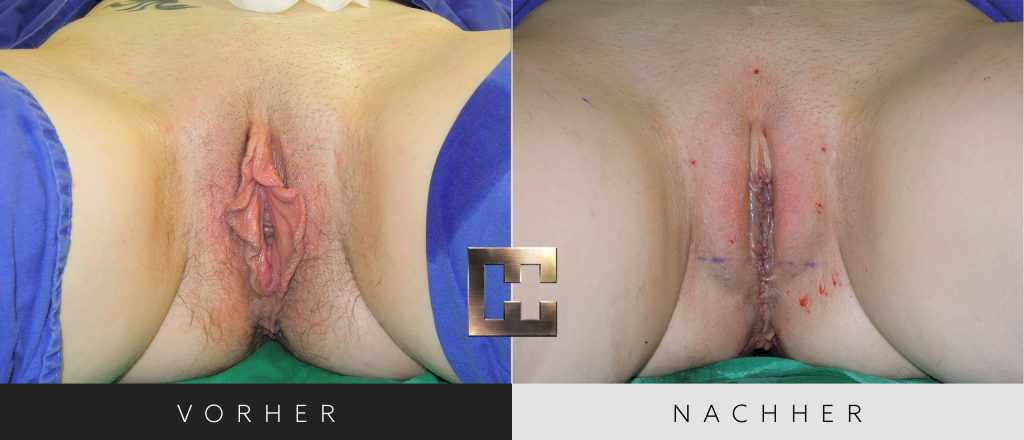 Vaginalverjüngung Vorher Nachher Bilder Patient 188