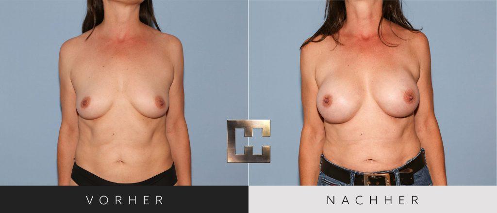 Brustvergrößerung Vorher Nachher Bilder Patient 193