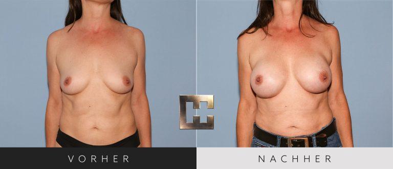 Brustvergrößerung Vorher Nachher 193 Bild #1