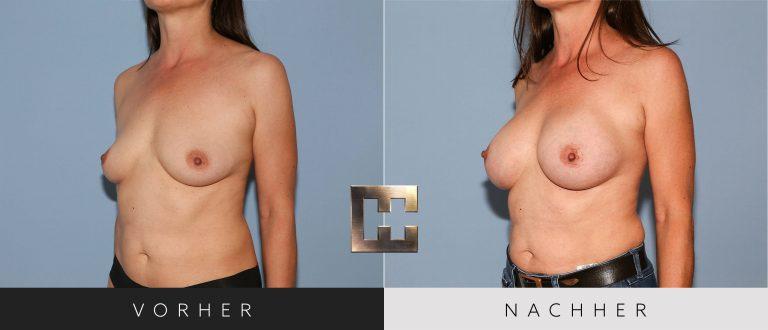Brustvergrößerung Vorher Nachher 193 Bild #2
