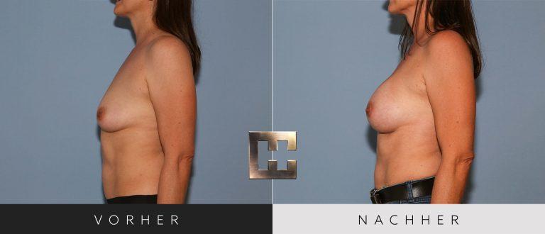 Brustvergrößerung Vorher Nachher 193 Bild #3