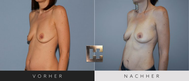 Pjure Breast Vorher Nachher 194 Bild #2