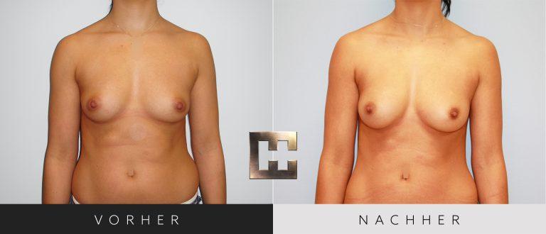 Pjure Breast Vorher Nachher 195 Bild #1