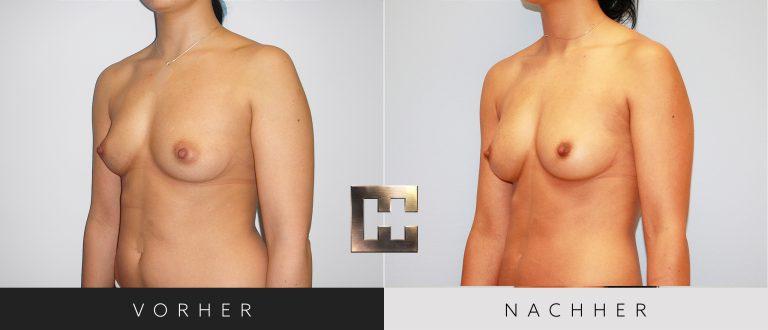 Pjure Breast Vorher Nachher 195 Bild #2