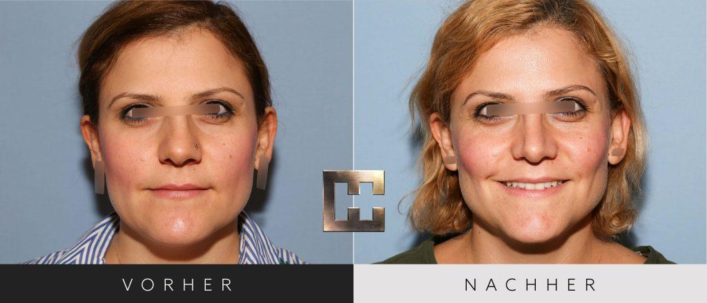 Nasenkorrektur Vorher Nachher Bilder Patient 198