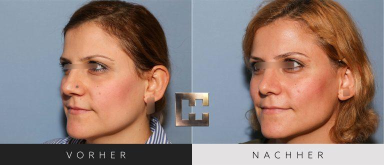 Nasenkorrektur Vorher Nachher 198 Bild #2
