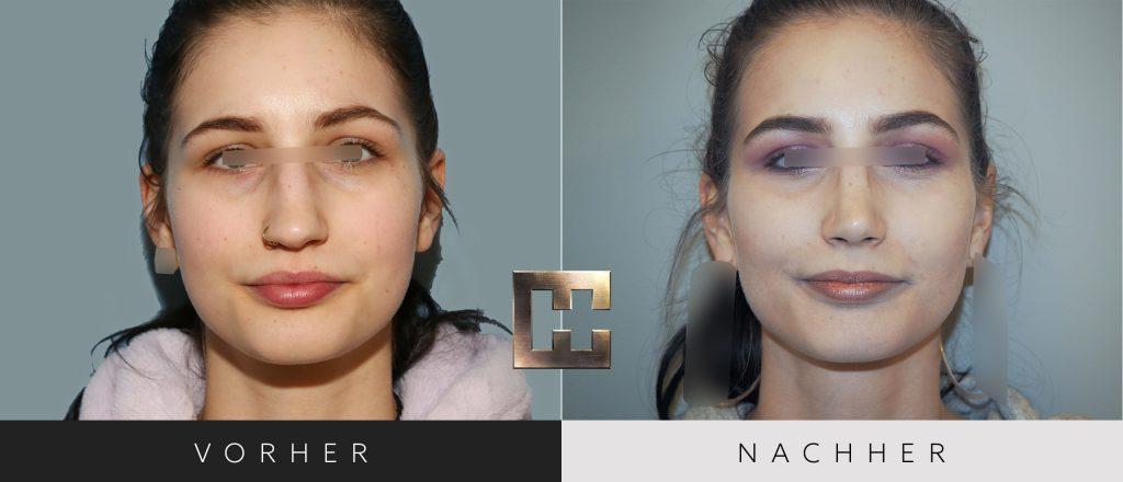 Nasenkorrektur Vorher Nachher Bilder Patient 199
