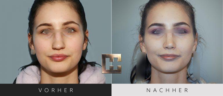 Nasenkorrektur Vorher Nachher 199 Bild #1